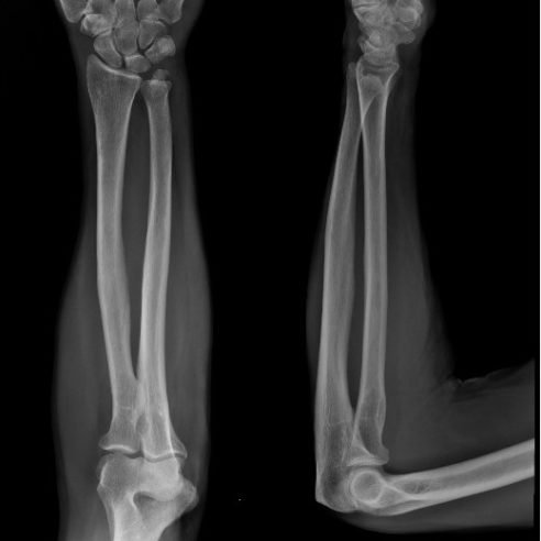 Radiografía de antebrazo