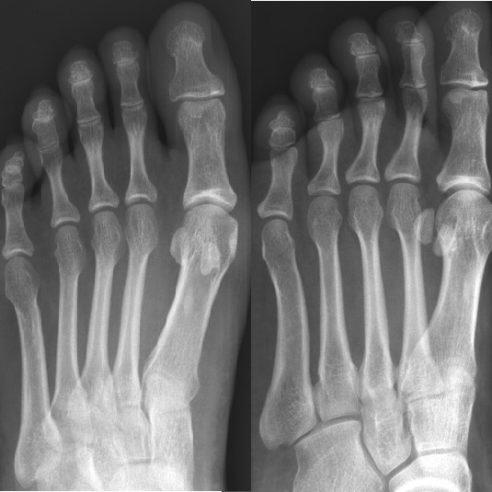 Radiografía de antepié