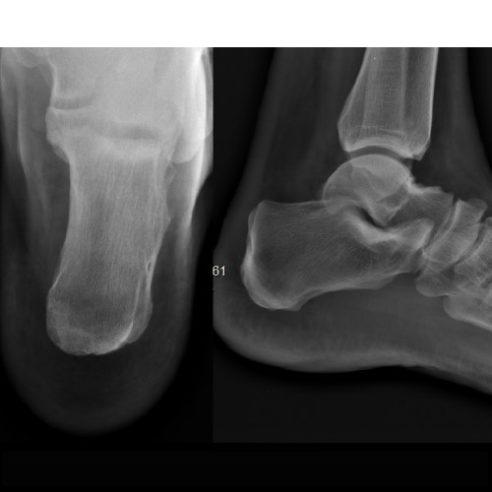 Radiografía de calcáneo