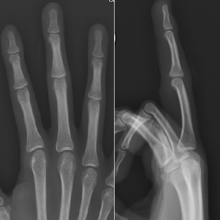 Radiografía de dedos en mano