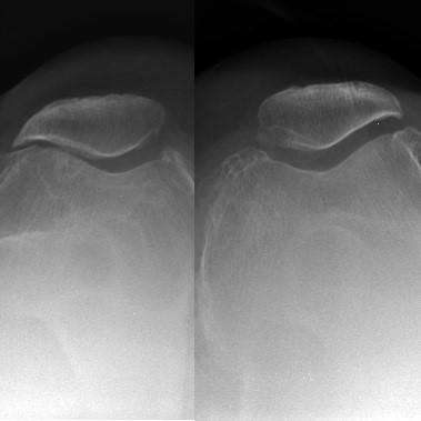 Radiografías axiales de rotula