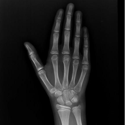Radiografía para detectar edad ósea (Carpograma)