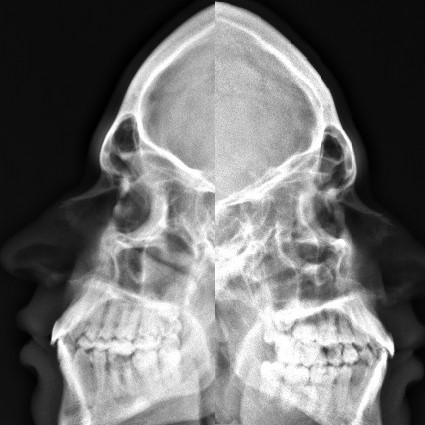 Radiografía de huesos nasales
