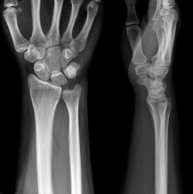 Radiografía de Muñeca