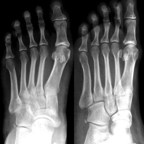 Radiografía de Pie AP y Lateral