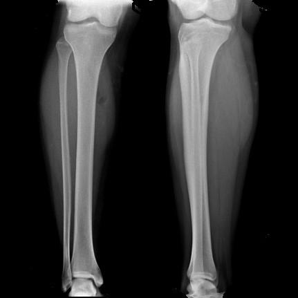 Radiografía de Pierna AP y lateral
