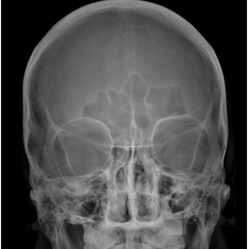 Radiografía de orbitas