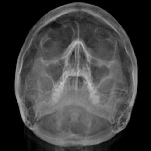 Radiografía de senos paranasales