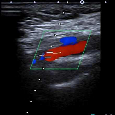 Doppler color de aorta abdominal